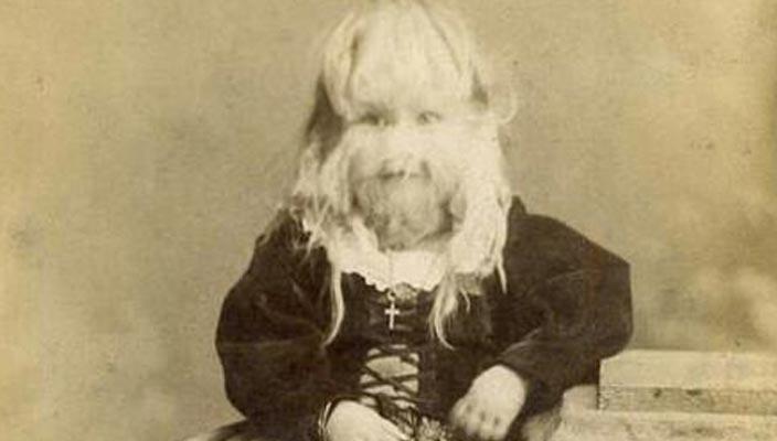 Бородатая девочка Алиса Доэрти