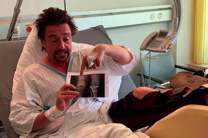 Ричард Хаммонд демонстрирует повреждение колена после аварии