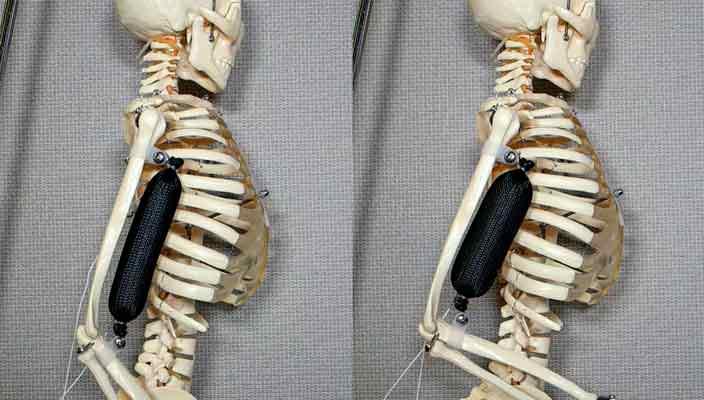 Созданы синтетические мышцы, в три раза прочнее человеческих
