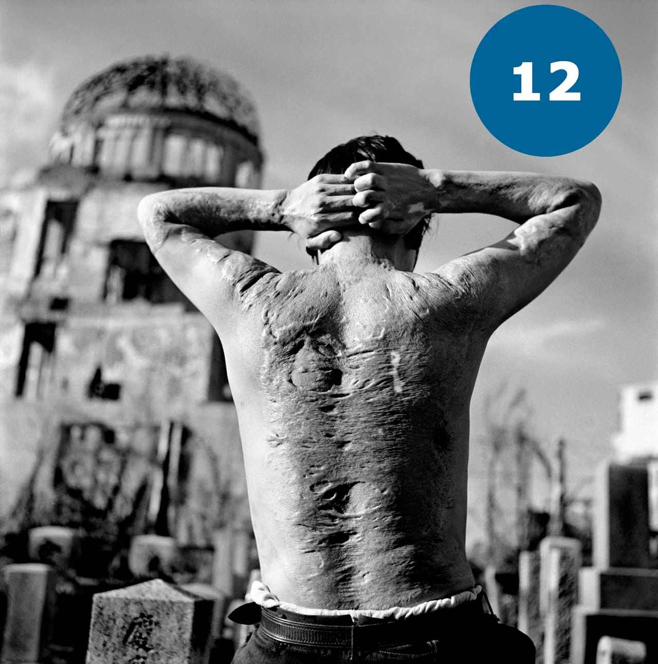 Опіки на тілі людини від вибуху атомної бомби